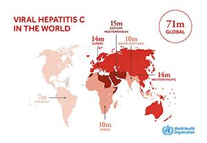 การตรวจไวรัสตับอักเสบซี (Hepatitis C Virus) ด้วย VERSANTTM HCV RNA assay